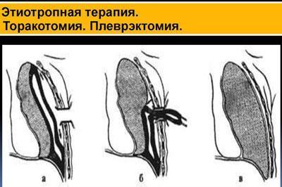 Операции при мезотелиоме