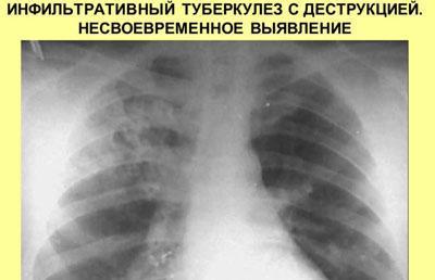 Запущенный туберкулез
