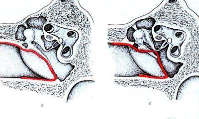 Тимпанопластика при разрыве барабанной перепонки