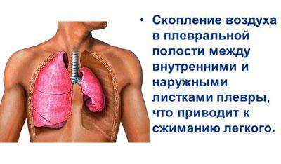 Наполнение плевральной полости воздухом