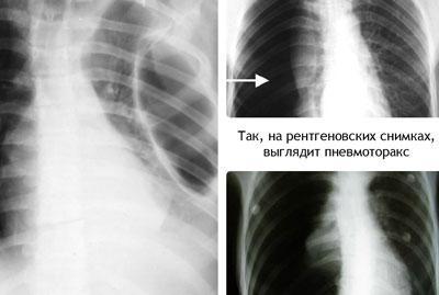 Спонтанный пневмоторакс на рентгене