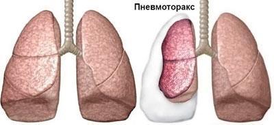 Пневмоторакс легкого