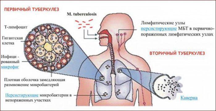 Первичный и вторичный туберкулез