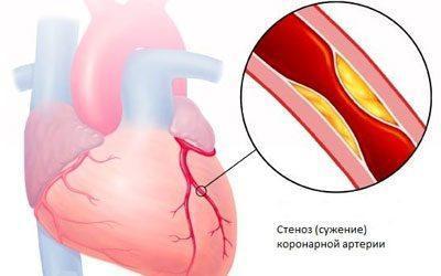 Проявление стенокардии