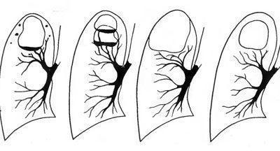 Формирование каверны при туберкулезе