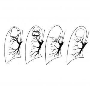 Каверна в лёгких