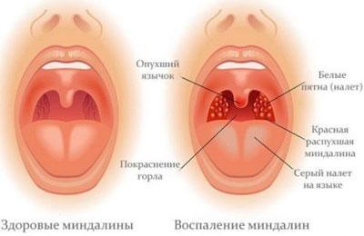 Проявление тонзилита
