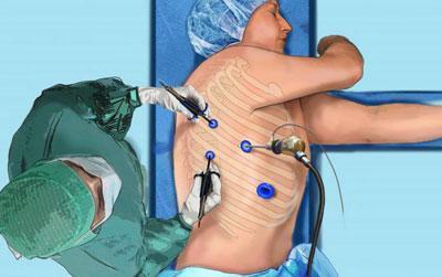 Хирургическое лечение пневмоторакса