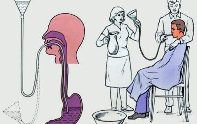 Промывка желудка