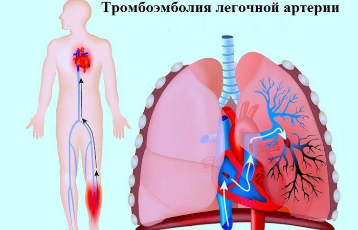 Тромбоэмболия артерии лёгкого