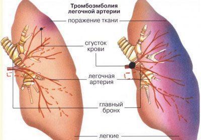 Проявление тромбоэмболии