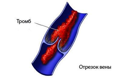 Следствие тромбоза