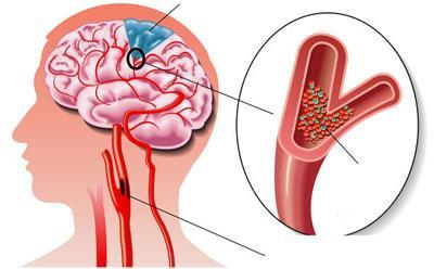 Тромб в сосуде головного мозга