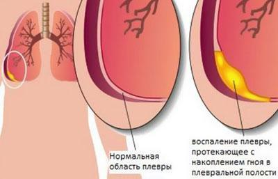 Причины экссудативного плеврита: симптомы и особенности лечения