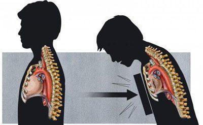 Травма грудной клетки