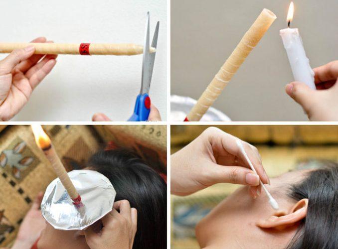Лечение при помощи ушной свечи