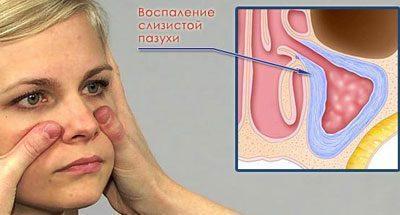 Воспаление при синусите