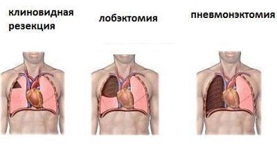 Операции на легком