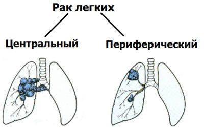 Виды рака легкого