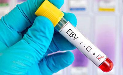 Диагностика на вирус Эпштейна-Барра
