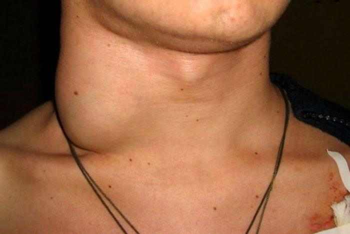 Значительно увеличиваются шейные лимфатические узлы.