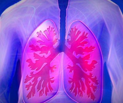 Туберкулёз бронхов