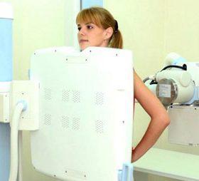 Можно ли делать флюорографию при планировании беременности