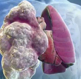 Что такое пневмофиброз легких: методы лечения