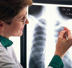 Патологические особенности фиброза легких, лечение и прогноз