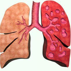 Образование в лёгких бронхоэктазов: особенности патологии, диагностика