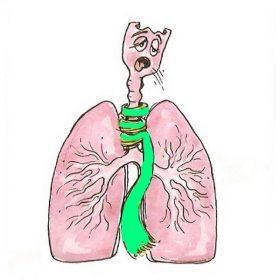 Оказание неотложной помощи при дыхательной недостаточности
