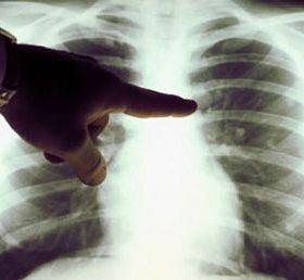 Кальцинаты в лёгких: причины образования, способы устранения