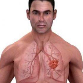 Выявляем первопричину заболевания: подкожная эмфизема