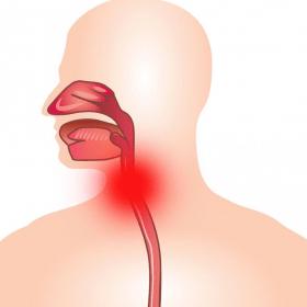 Симптомы и лечение воспаления трахеи