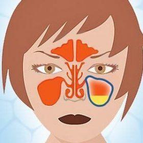 Особенности бактериального ринита: симптомы и признаки, методы лечения