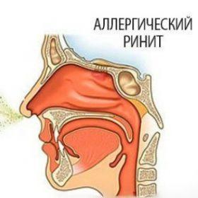 Особенности лечения аллергического ринита