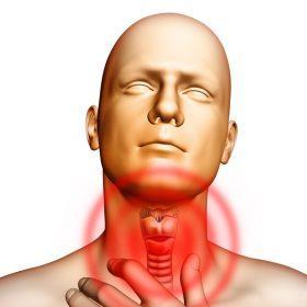 Причины, симптомы и лечение рака горла и гортани