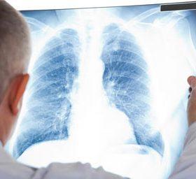 Стадии, причины и симптомы канцероматоза лёгких