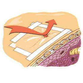 Правила эффективного наложения окклюзионной повязки при открытом пневмотораксе