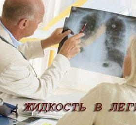 Скопление жидкости в лёгких при онкологии: признаки и терапия