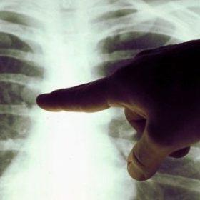 Симптомы, лечение и прогноз срока жизни при метастазах в лёгких