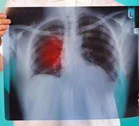 Причины затемнения лёгких на рентген-снимке