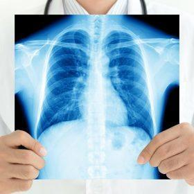 Методы диагностики туберкулёза у взрослых