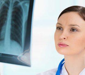 Бронхоэктатическая болезнь: формы, симптомы и методы лечения
