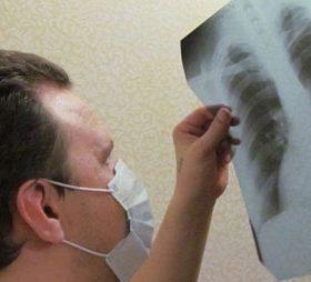 Причины осумкованного плеврита легких: симптоматика и терапия