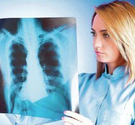 Что такое инфильтрат в лёгких