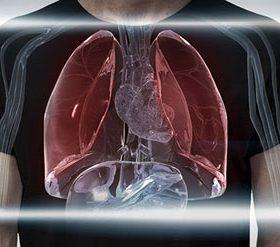Особенности плоскоклеточного рака лёгких: формы, стадии, лечение и прогноз