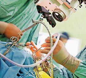 Особенности проведения лобэктомии лёгкого