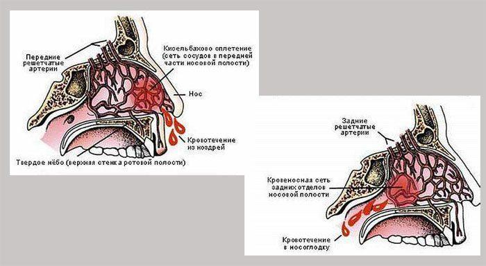 Виды носового кровотечения