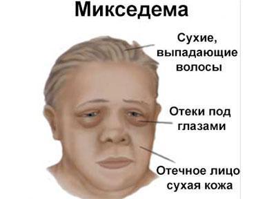 Симптомы микседемы